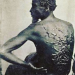 Scars from a whipping on the back of a man who had been enslaved