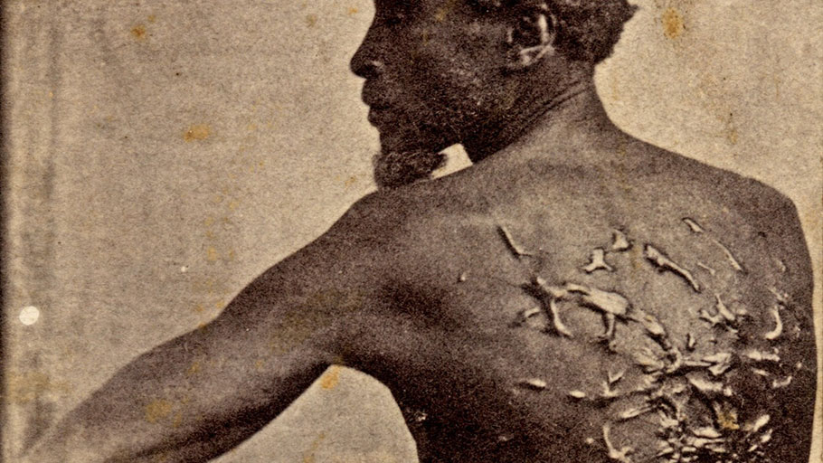 "An 1863 photograph that became known as ""The Scourged Back""' shows the whipping scars on Gordon, a former slave in Louisiana who escaped to Union lines."